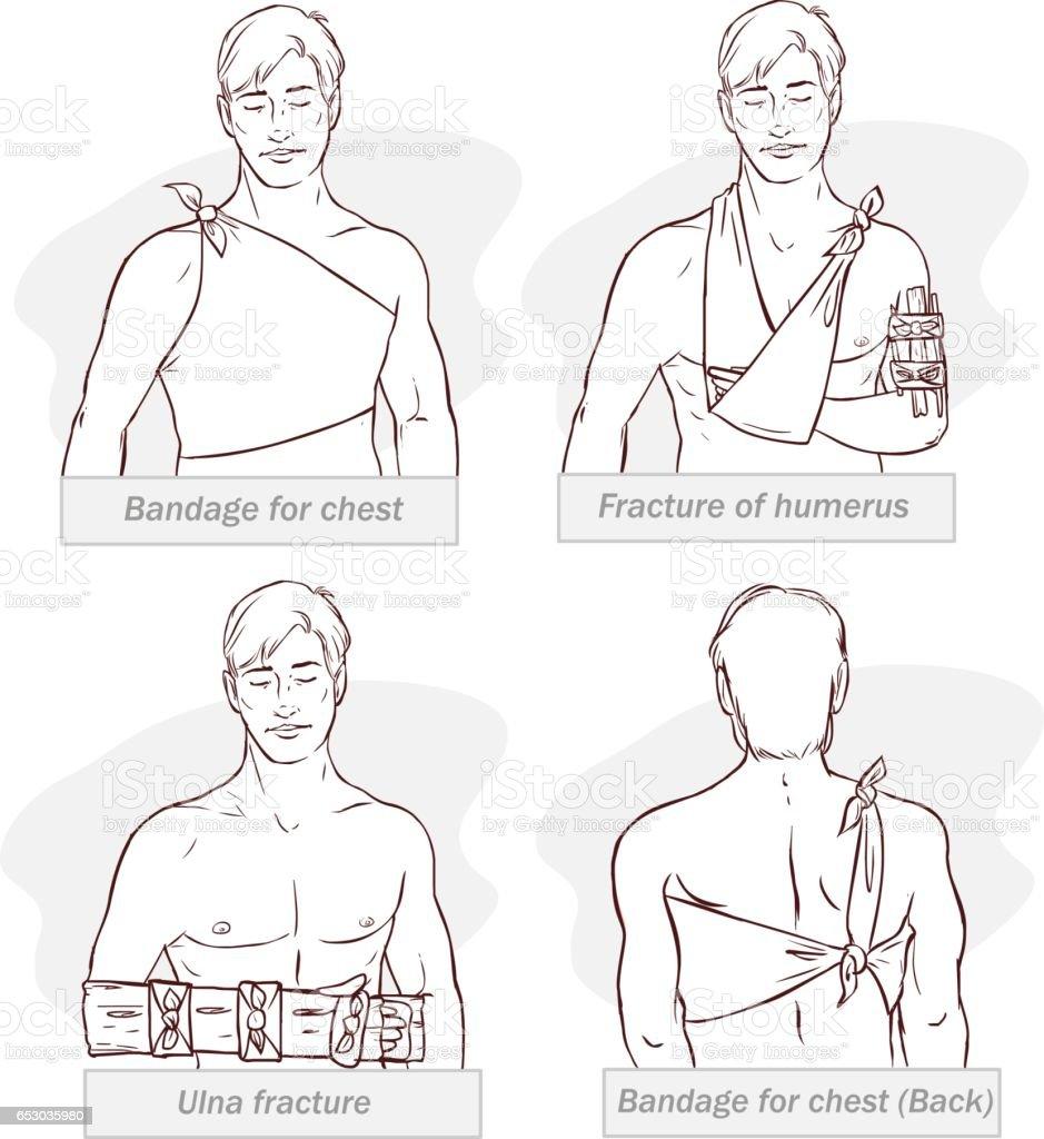 Vektorillustration Der Abandage Für Brust Bruch Der Oberarmknochen ...
