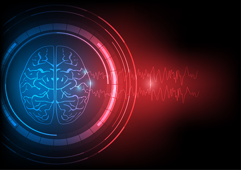 Vector illustration of abnormal brain and epileptic EEG wave discharges