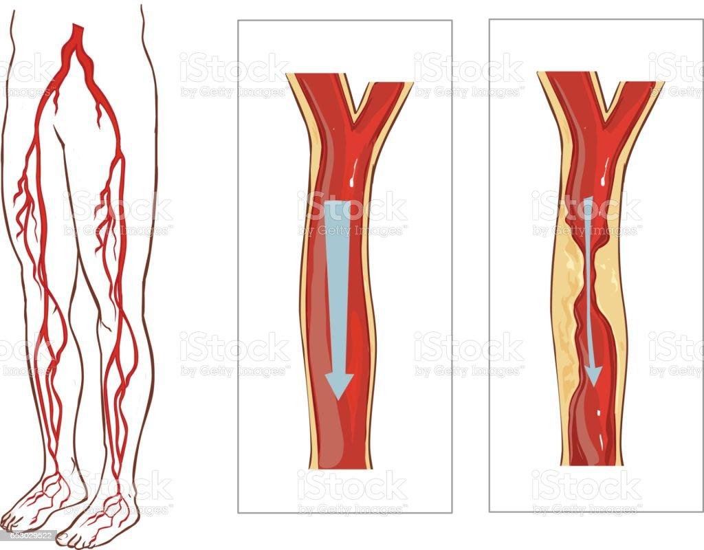 Vector illustration of aVascular System Legs. vector art illustration
