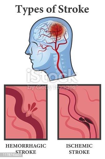 Vector illustration of Brain Stroke Types. Ischemic and Hemorrhagic types