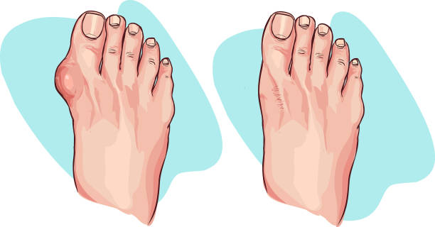 Vector illustration of bunion before and after operation vector art illustration