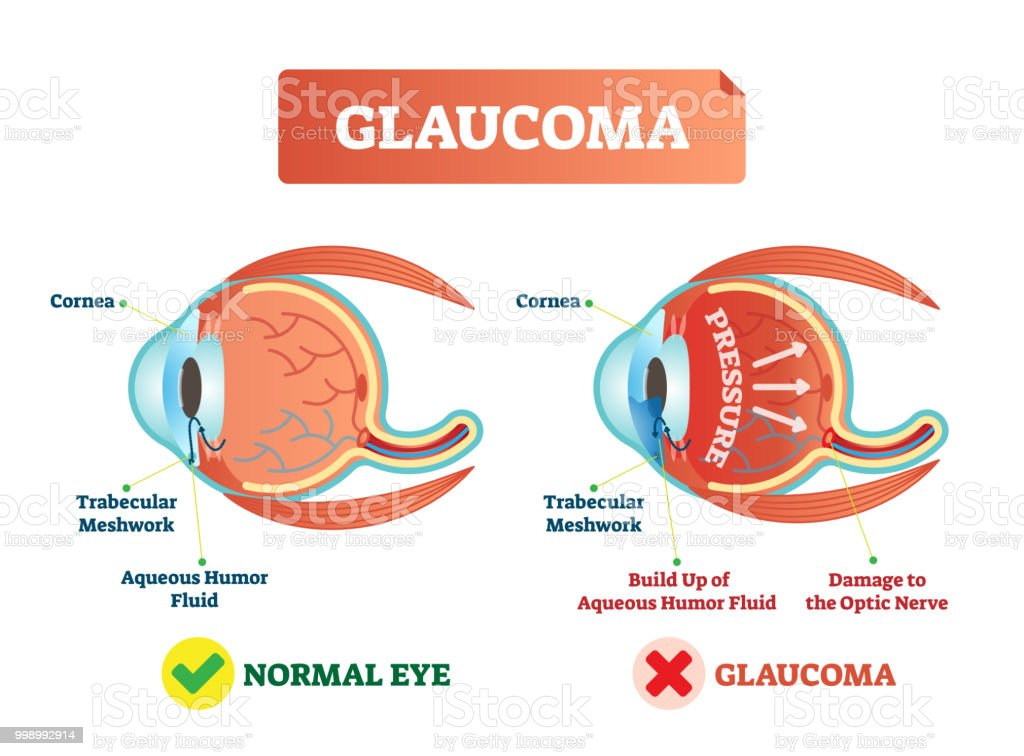 Ilustración de Ilustración De Vector De La Enfermedad De Glaucoma ...