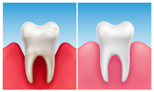 Vector illustration of gum disease -  periodontitis in compare with healthy white tooth Vector illustration of gum disease -  periodontitis in compare with healthy white tooth inflammation stock illustrations