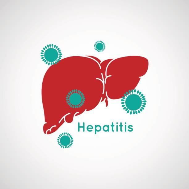 Vector illustration of Hepatitis vector art illustration