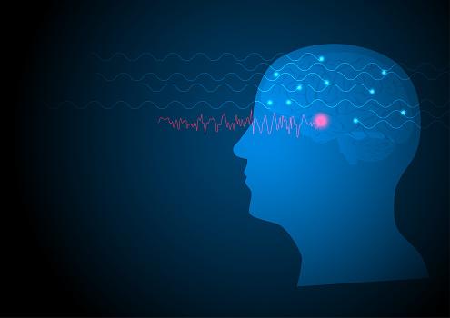 Vector illustration of human EEG seizure from temporal lobe