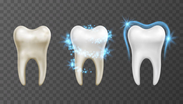 bildbanksillustrationer, clip art samt tecknat material och ikoner med vektor illustration av tandblekning process-rengöring och skydd mot fläckar och bakterier - molar