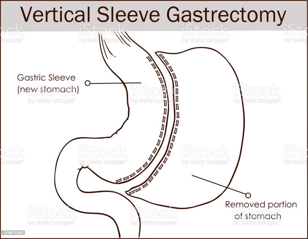 Vector Illustration Of Vertical Sleeve Gastrectomy Stock Vector Art ...