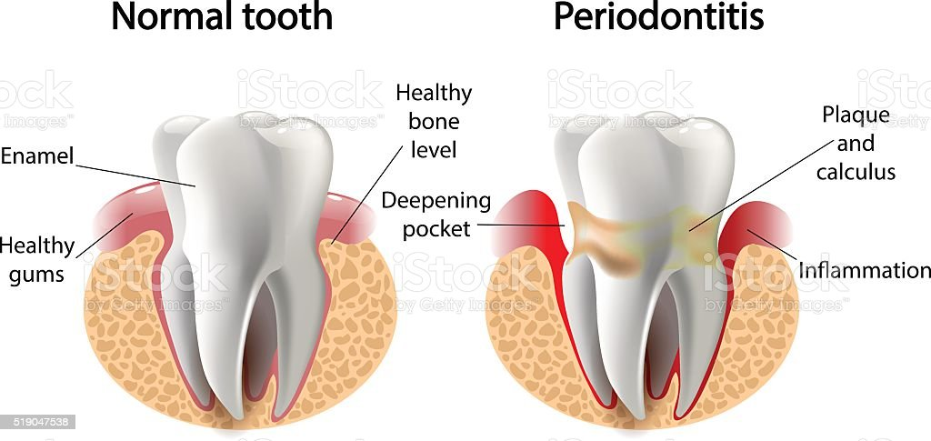 vector image tooth  Periodontitis disease - Royalty-free Abces vectorkunst