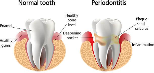 stockillustraties, clipart, cartoons en iconen met vector image tooth  periodontitis disease - dentine