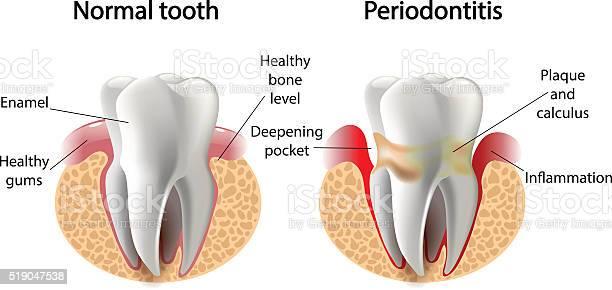 Vector Image Tooth Periodontitis Disease Stockvectorkunst en meer beelden van Abces