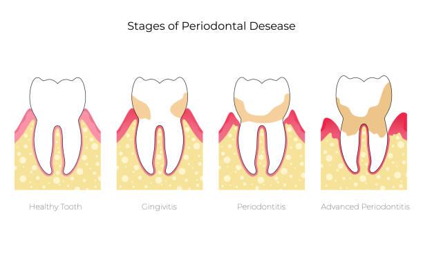 bildbanksillustrationer, clip art samt tecknat material och ikoner med vektor isolerad illustration av tand - tandsten
