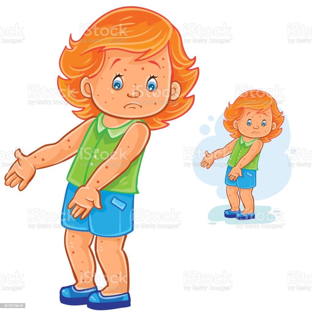 Vector little girl with a rash on skin, smallpox, chickenpox, mange, allergy vector art illustration