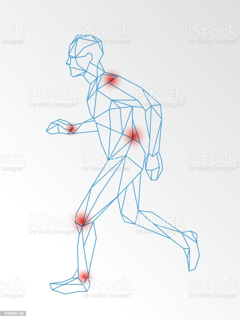 Vector medical illustration of joint pain demonstrated on running man vector art illustration
