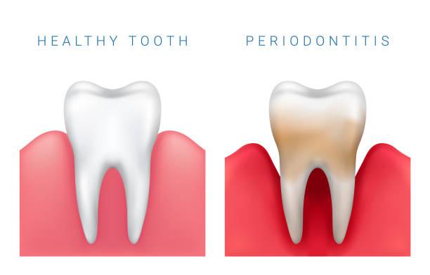 stockillustraties, clipart, cartoons en iconen met medische vectorillustratie van realistische gezond tand en parodontitis ziekte - tandvleesontsteking