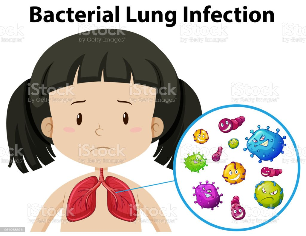 A Vector of Bacterial Lung Infection - Royalty-free Anatomy stock vector