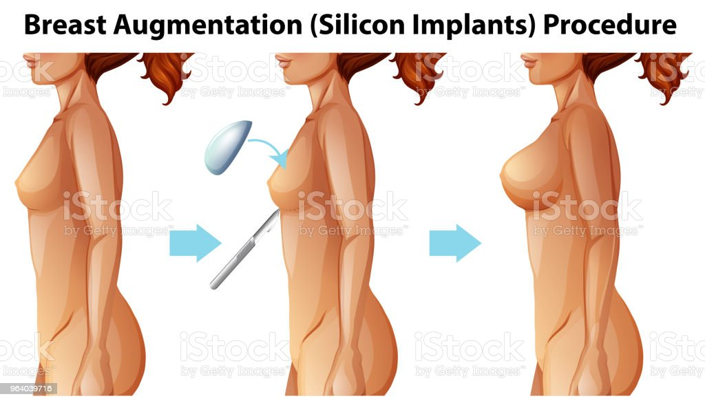 A Vector of Female Breast Implants - Royalty-free Adult stock vector