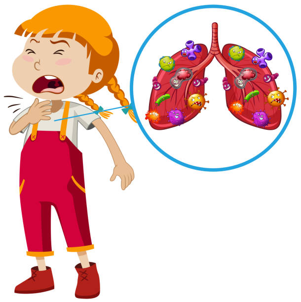 A Vector of Girl Lung Infection A Vector of Girl Lung Infection illustration sore throat stock illustrations