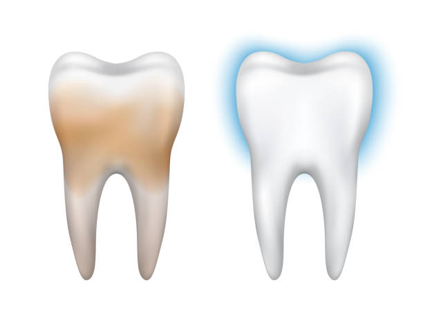 Best Dirty Teeth Illustrations, Royalty-Free Vector ...