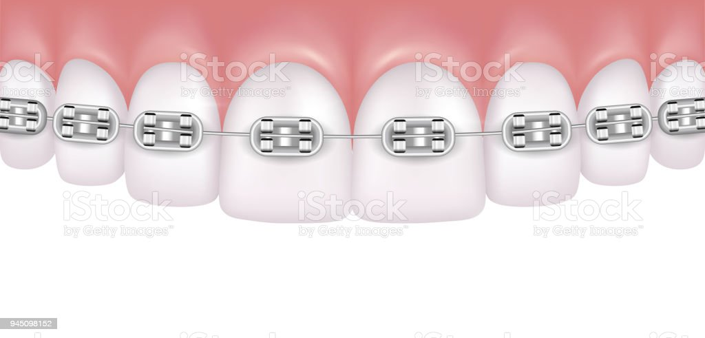 Vector realistic perfect white teeth with braces isolated on white background vector art illustration