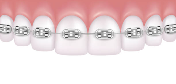 vector realistic perfect white teeth with braces isolated on white background - orthodontist stock illustrations, clip art, cartoons, & icons