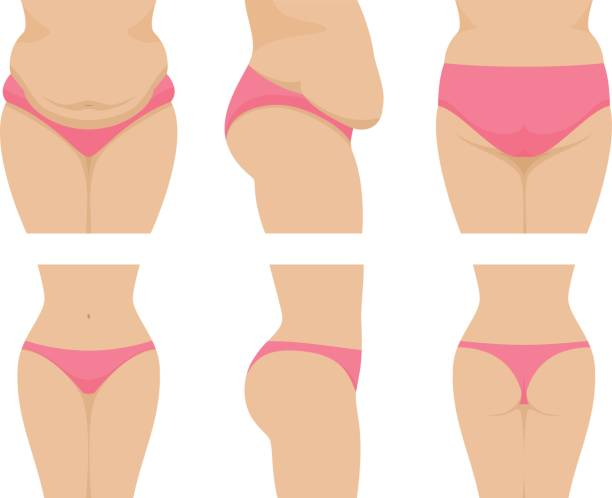 Vector set female waist before after losing weight vector art illustration
