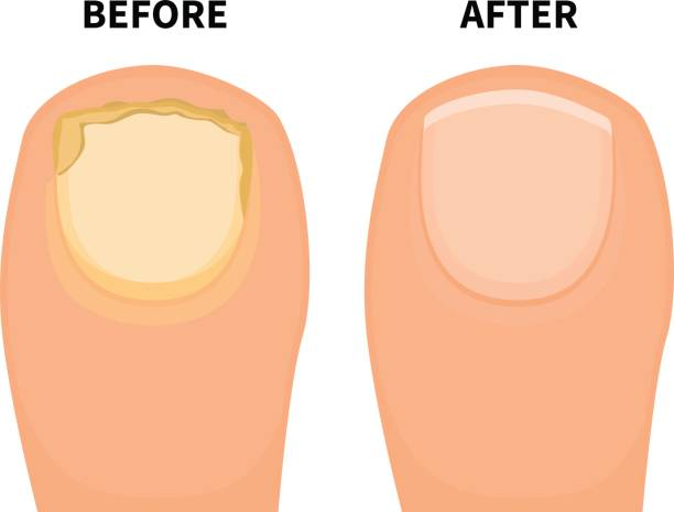 Vector toe nail before and after fungal disease vector art illustration