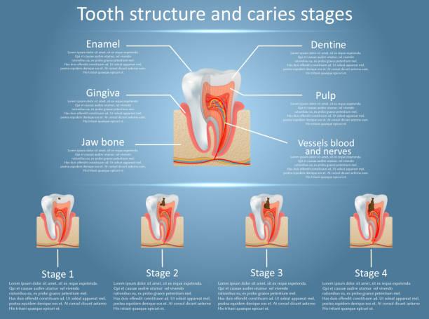 stockillustraties, clipart, cartoons en iconen met vector tand structuur diagram en cariës stadia - dentine