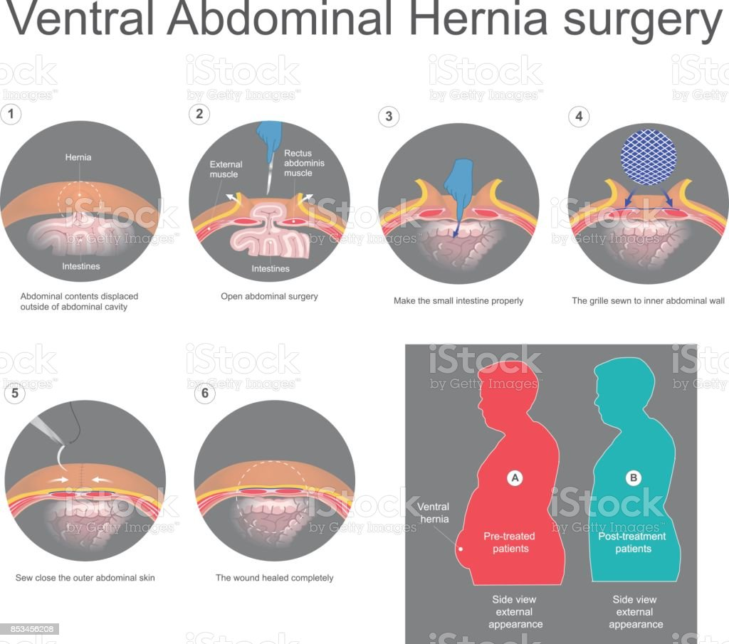 Ventral hernia is a bulge of tissues through an opening of weakness within your abdominal wall muscles. Info graphic vector. vector art illustration