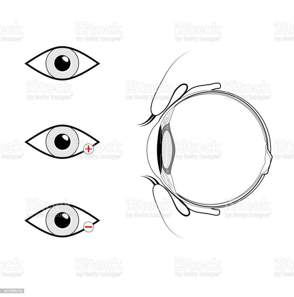 Vertikalschnitt Der Augen Und Augenlider Schwarz Und Weiß Stock ...