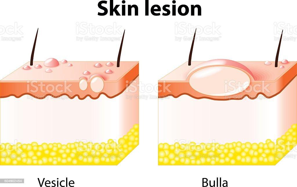 Vesicle And Bulla Skin Lesion Stock Illustration ...