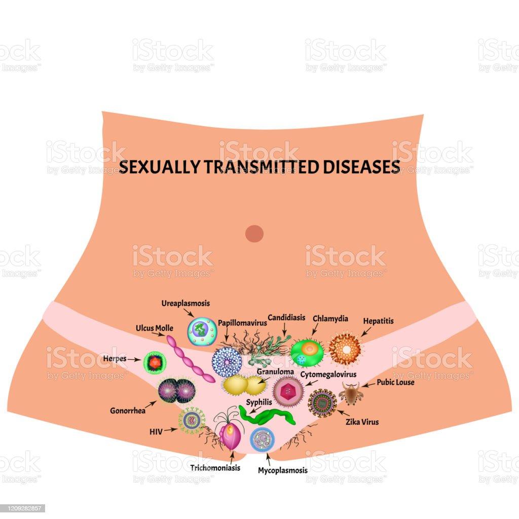 enfermedad bacteriana de transmision sexuales