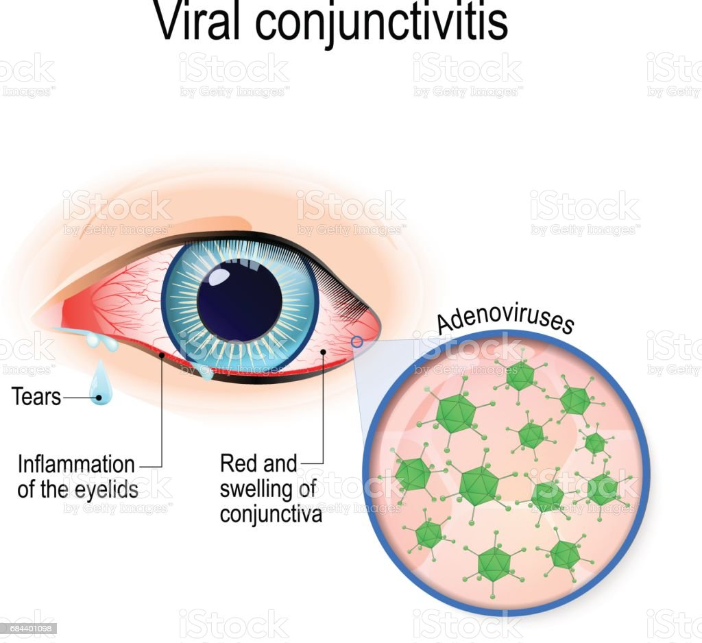 Viral conjunctivitis. vector art illustration