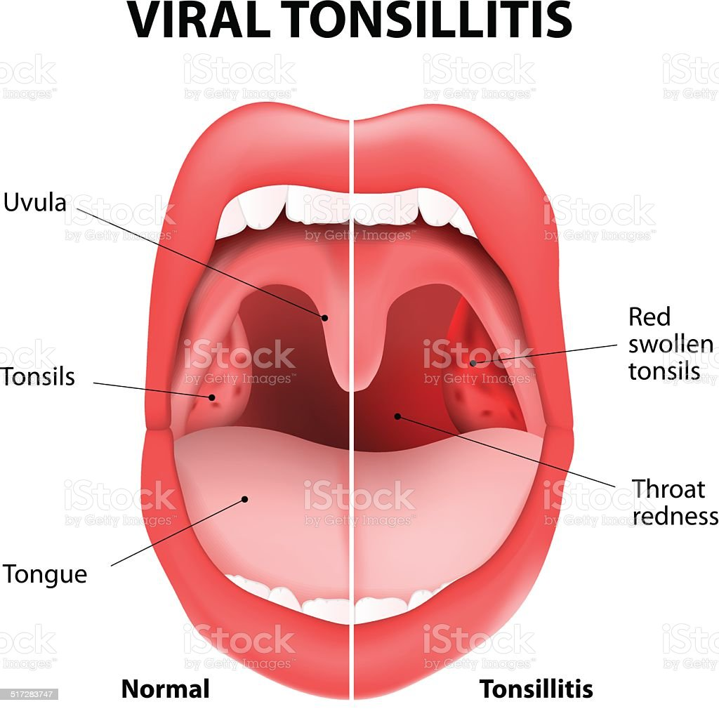 Viral Tonsillitis Stock Vector Art & More Images of Anatomy ...