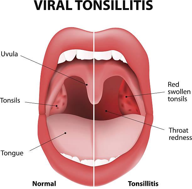 illustrazioni stock, clip art, cartoni animati e icone di tendenza di virale tonsillite - lingua umana
