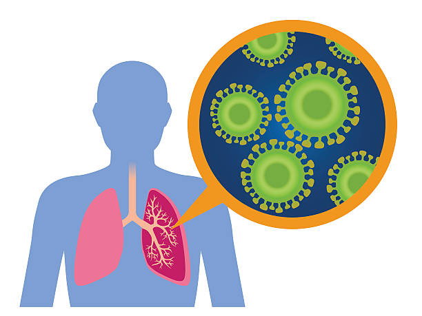 Virus and infection, image illustration Virus and infection, image illustration sudden acute respiratory syndrome stock illustrations