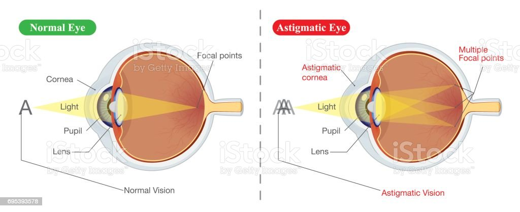 Vision of Normal eye and Astigmatic vector art illustration