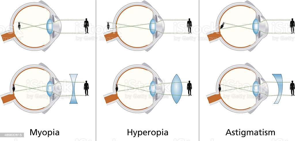 Visual Defects - Myopia, Hyperopia And Astigmatism vector art illustration