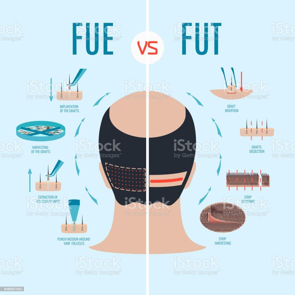 FUE vs FUT vector art illustration
