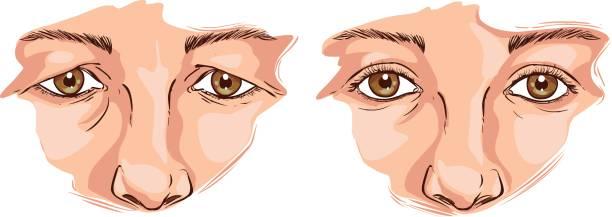ilustrações de stock, clip art, desenhos animados e ícones de white background vector illustration of a eyelid lift - going inside eye