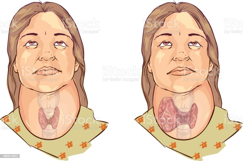 white backround Vector illustration of a goiter vector art illustration