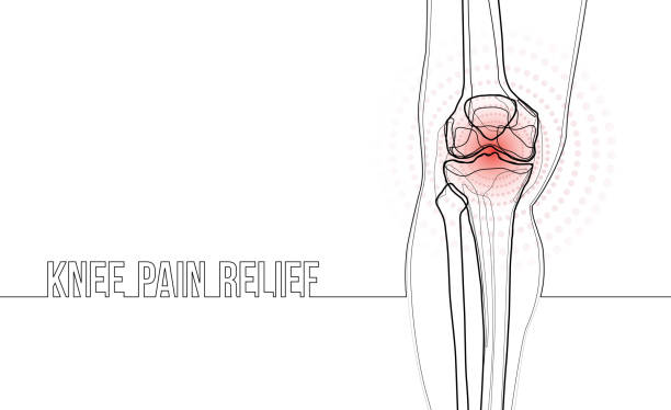 White horizontal continuous line drawing concept banner about knee pain relief. White horizontal continuous line drawing concept banner knee pain relief. Linear bones joints of leg. For advertising, medical publications in social media. Vector illustration. relief emotion stock illustrations