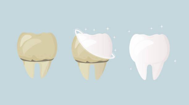 bildbanksillustrationer, clip art samt tecknat material och ikoner med blekning och tandrengöring. tand före behandling och borstning gul och sjuk, efter vit och frisk. daglig munhygien. dental design affisch. platt design - tandblekning