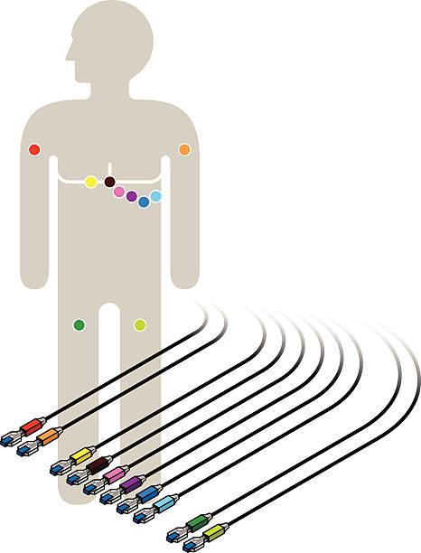 illustrazioni stock, clip art, cartoni animati e icone di tendenza di ecg e ecg schema di cablaggio - elettrodo