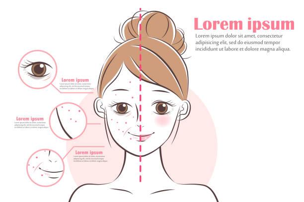 illustrations, cliparts, dessins animés et icônes de femme sur les thérapies anti-âge - femme tache de rousseur