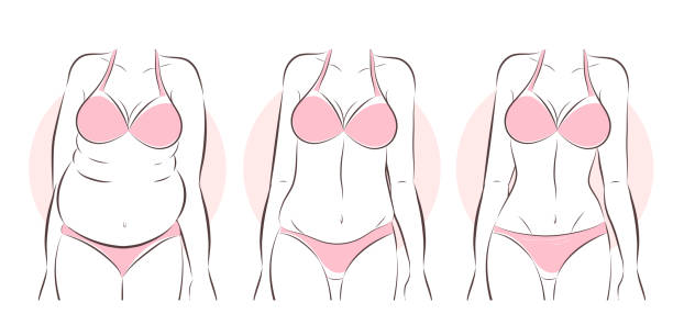Best Cellulite Treatment Illustrations, Royalty-Free Vector