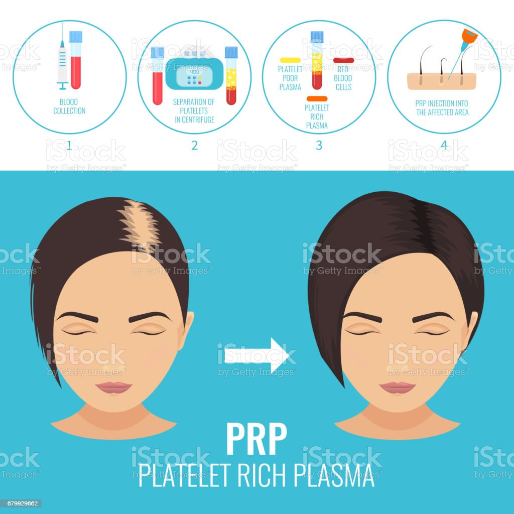 Woman before and after RPR therapy vector art illustration
