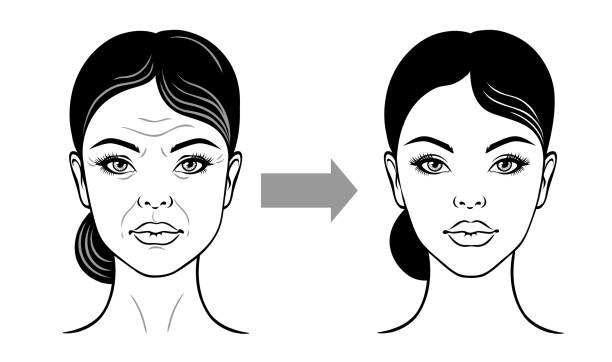 Woman face before and after facelift, anti-aging. Vector illustration on a white background. Woman face before and after facelift, anti-aging. Vector illustration on a white background. antiaging stock illustrations