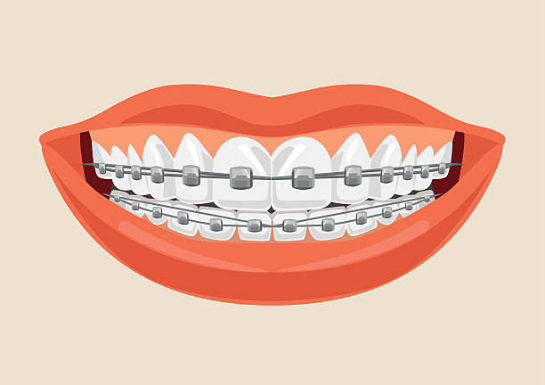 woman smile with braces. vector flat cartoon illustration - manschetten stock-grafiken, -clipart, -cartoons und -symbole