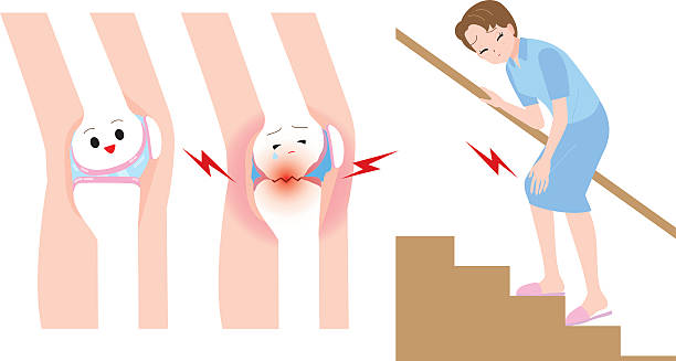 Woman to climb the stairs. Women joint pain vector art illustration