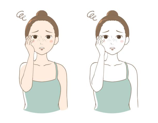 illustrations, cliparts, dessins animés et icônes de une femme qui s'inquiète des taches de rousseur - femme tache de rousseur